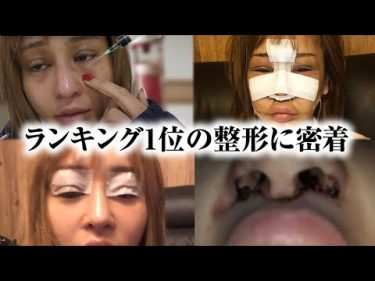 【密着】2020年上半期1番流行った整形手術 by 桜井野の花TV